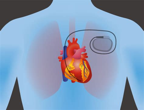 Pacemaker Placement   Cardiovascular Institute of the Shoals