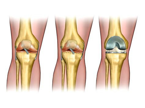 How Long Does a Knee Replacement Last?